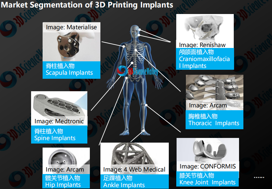 Selection of raw materials for medical 3D printed implants